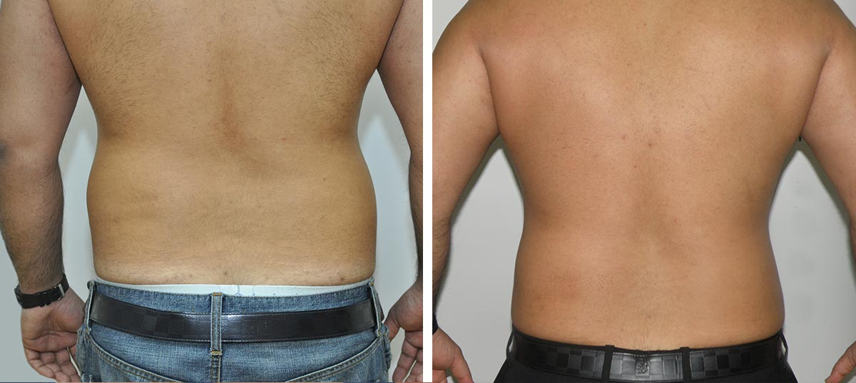 liposuction before after results