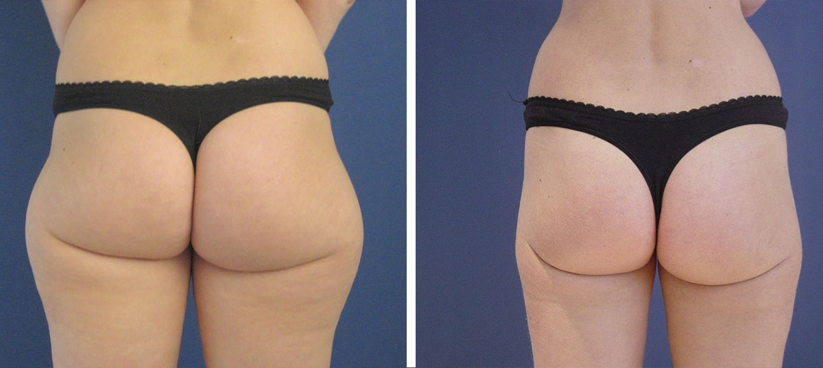 liposuction before after surgery