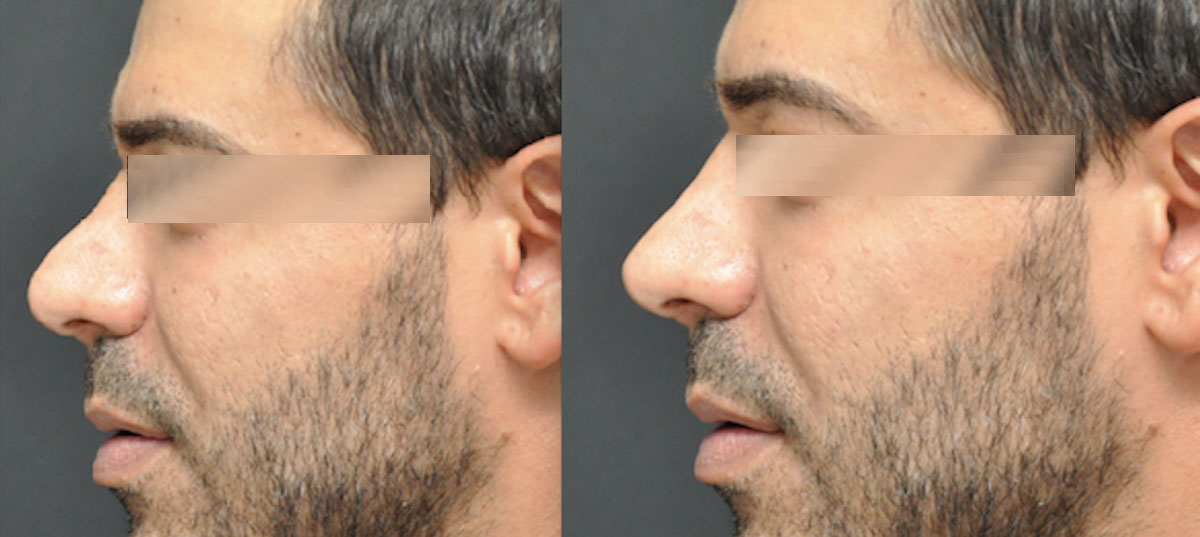 rhinoplasty cosmetic surgery before after