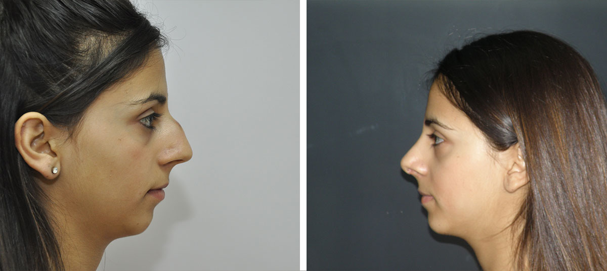 rhinoplasty cosmetic surgery before after results